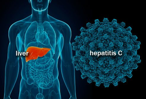 Free Testing Offered During Hepatitis Awareness Month